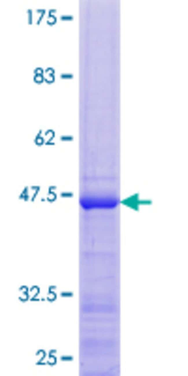 Abnova™Human RPL26L1 Full-length ORF (NP_057177.1, 1 a.a. - 145 a.a.) Recombinant Protein with GST-tag at N-terminal 10μg Abnova™Human RPL26L1 Full-length ORF (NP_057177.1, 1 a.a. - 145 a.a.) Recombinant Protein with GST-tag at N-terminal