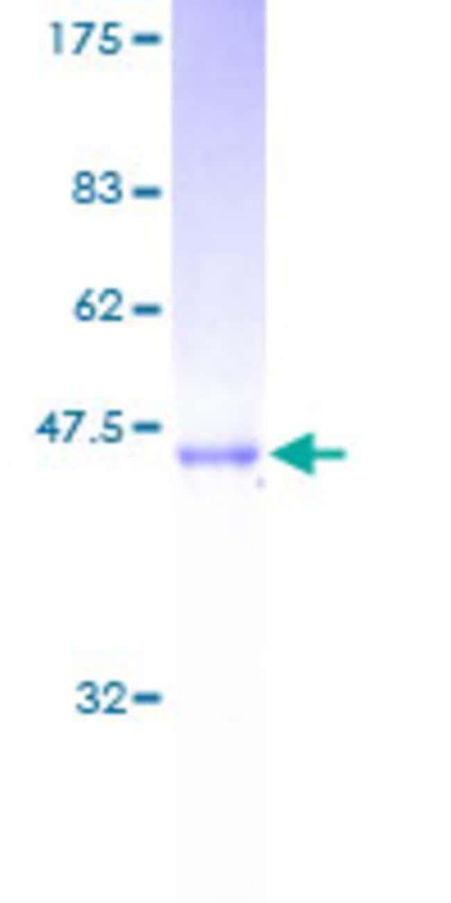 AbnovaHuman SARA2 Full-length ORF (AAH02847, 1 a.a. - 198 a.a.) Recombinant