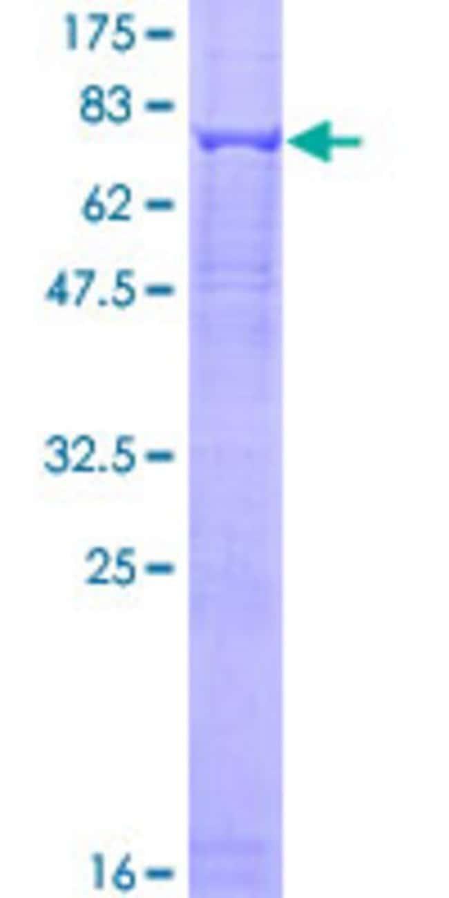 AbnovaHuman ASB3 Full-length ORF (AAH06488.1, 1 a.a. - 518 a.a.) Recombinant
