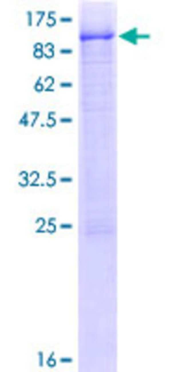 AbnovaHuman RNF12 Full-length ORF (NP_057204.2, 1 a.a. - 624 a.a.) Recombinant