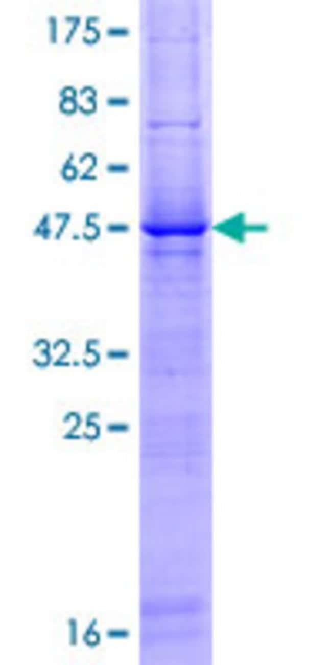 AbnovaHuman LOC51136 Full-length ORF (AAH06971.1, 1 a.a. - 208 a.a.) Recombinant