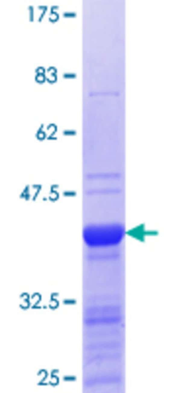 AbnovaHuman ING4 Partial ORF (NP_057246.2, 73 a.a. - 180 a.a.) Recombinant