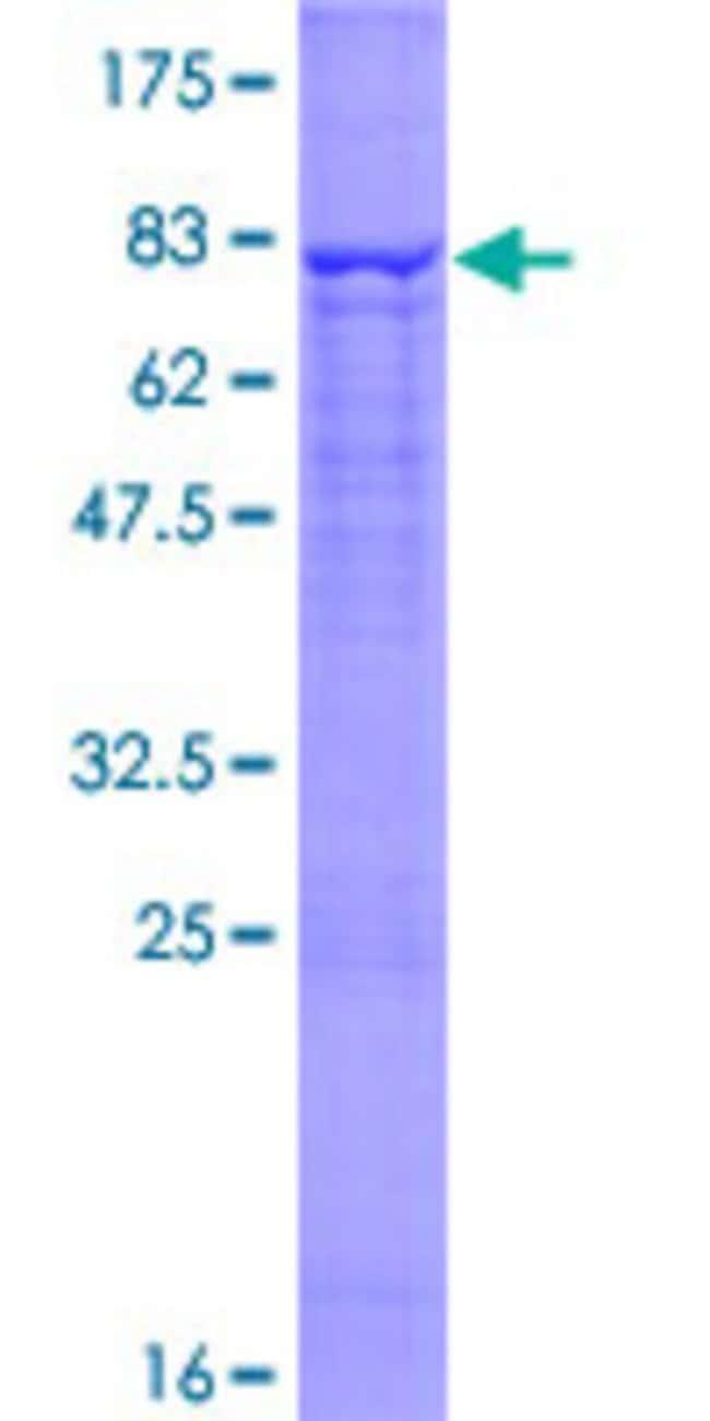 AbnovaHuman CEECAM1 Full-length ORF (NP_057258.2, 1 a.a. - 517 a.a.) Recombinant