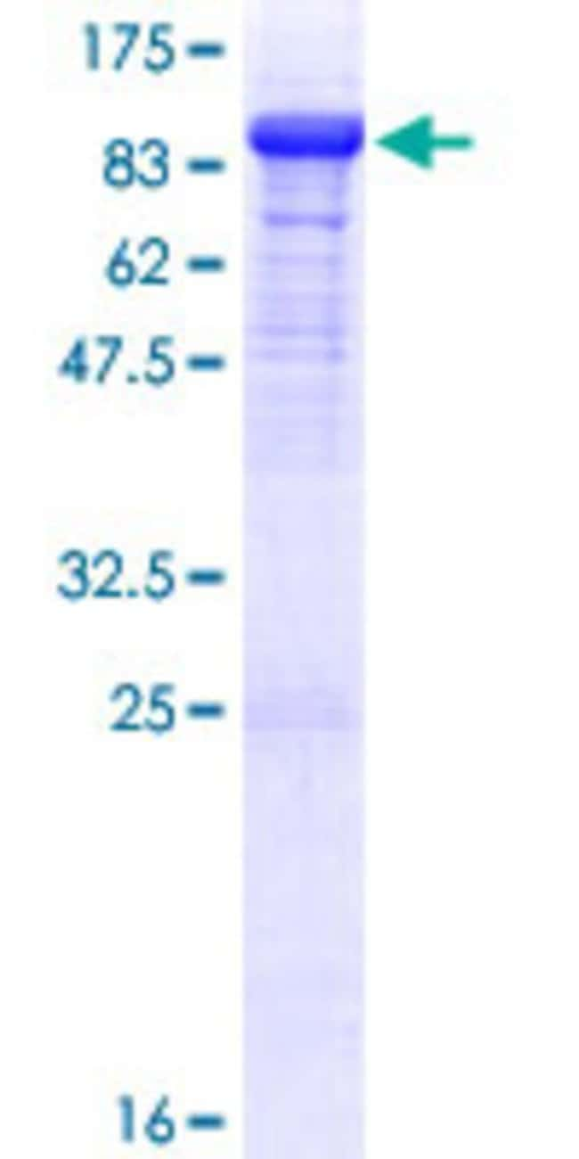 Abnova™Human DBR1 Full-length ORF (NP_057300.2, 1 a.a. - 544 a.a.) Recombinant Protein with GST-tag at N-terminal 10μg Abnova™Human DBR1 Full-length ORF (NP_057300.2, 1 a.a. - 544 a.a.) Recombinant Protein with GST-tag at N-terminal