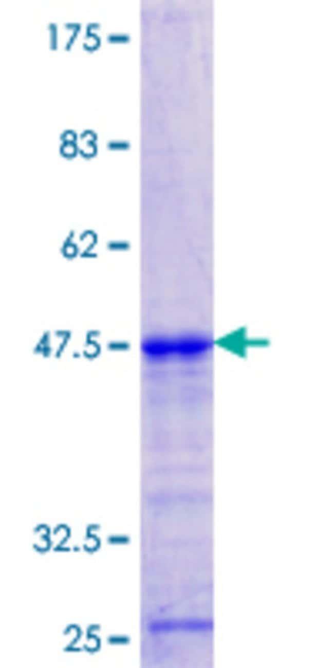AbnovaHuman DBR1 Partial ORF (NP_057300.2, 445 a.a. - 538 a.a.) Recombinant