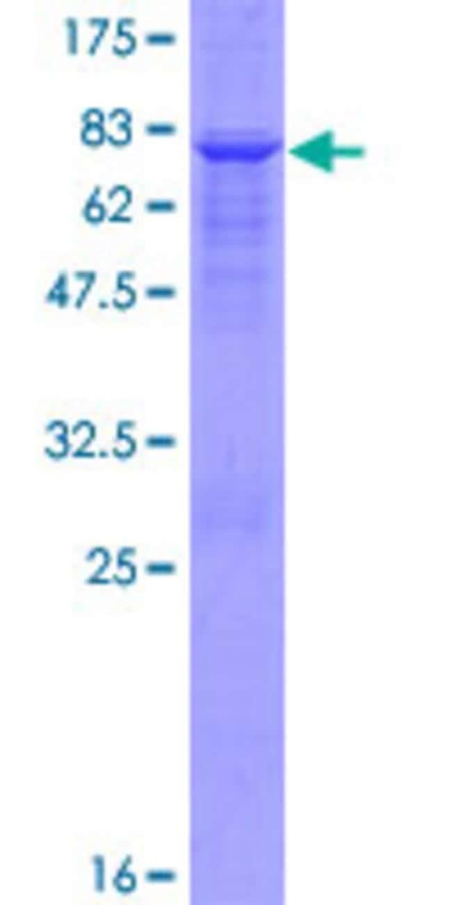 AbnovaHuman AADAT Full-length ORF (AAH31068.1, 1 a.a. - 429 a.a.) Recombinant