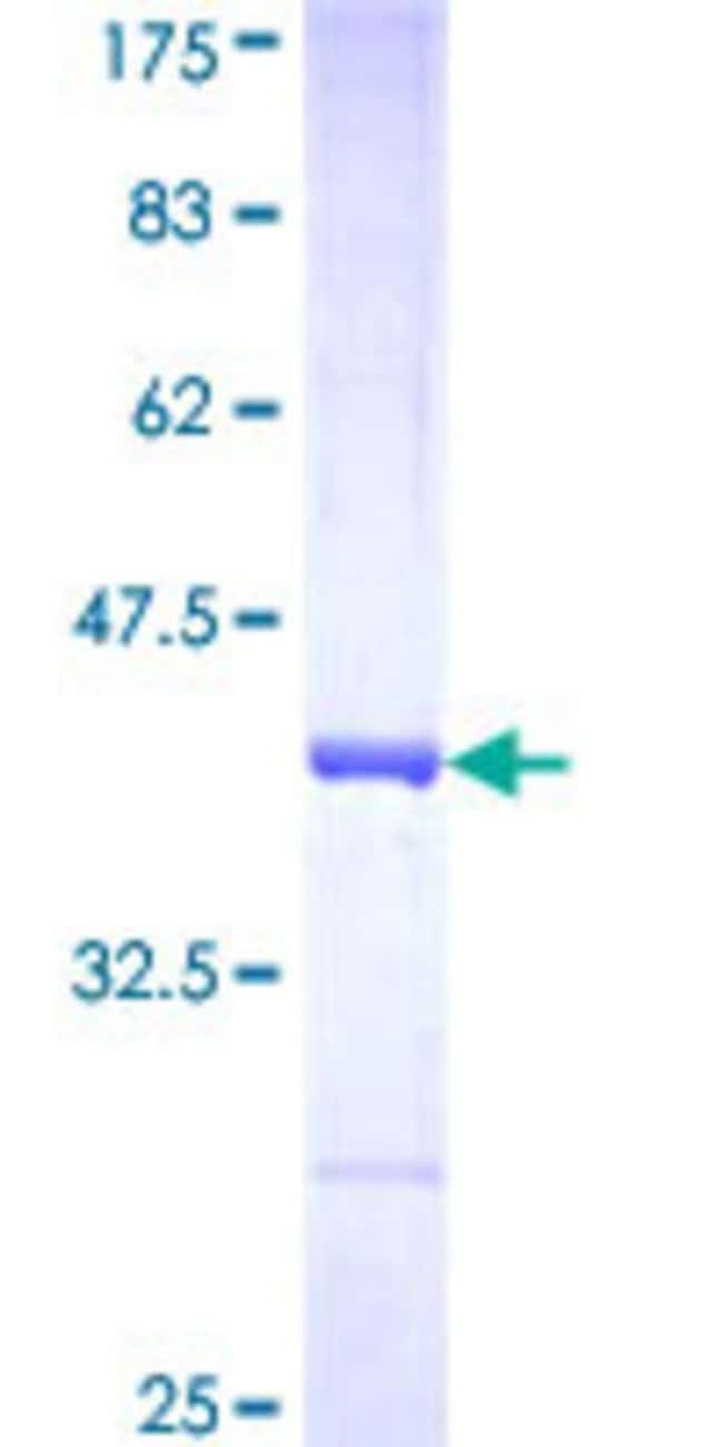 AbnovaHuman AADAT Partial ORF (NP_057312, 326 a.a. - 425 a.a.) Recombinant