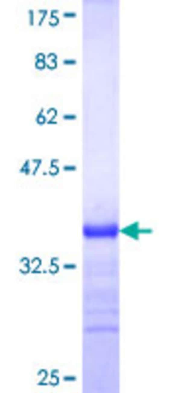 AbnovaHuman NAGPA Partial ORF (NP_057340, 309 a.a. - 408 a.a.) Recombinant