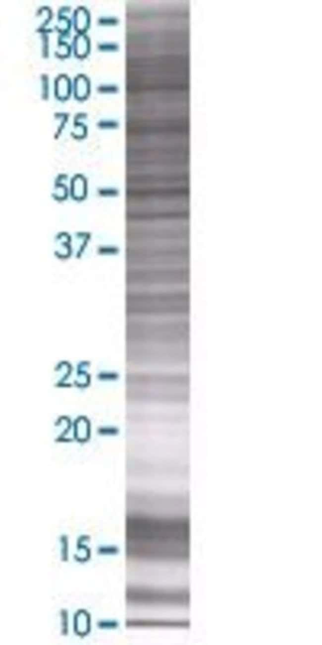 AbnovaATPBD1C 293T Cell Transient Overexpression Lysate (Denatured) (T01)