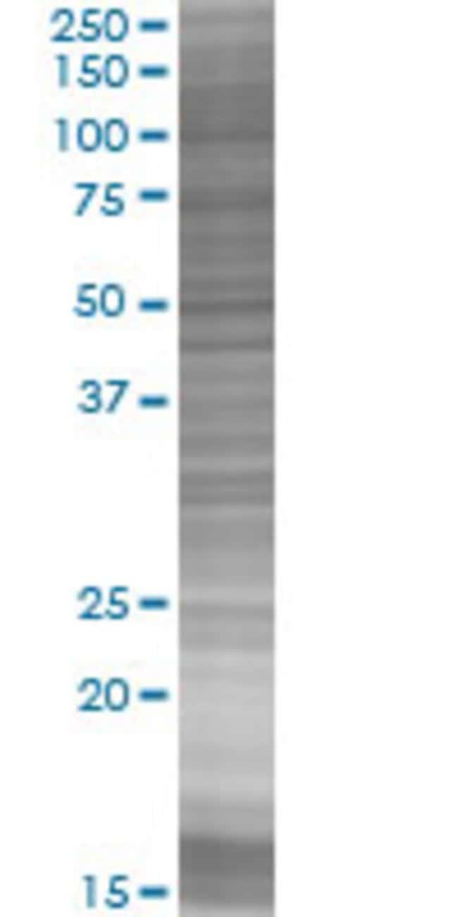 AbnovaATPBD1C 293T Cell Transient Overexpression Lysate (Denatured) (T03)