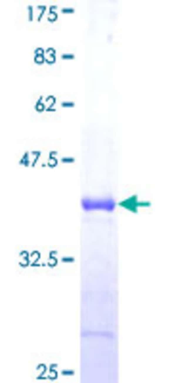AbnovaHuman HERC5 Partial ORF (NP_057407, 915 a.a. - 1024 a.a.) Recombinant