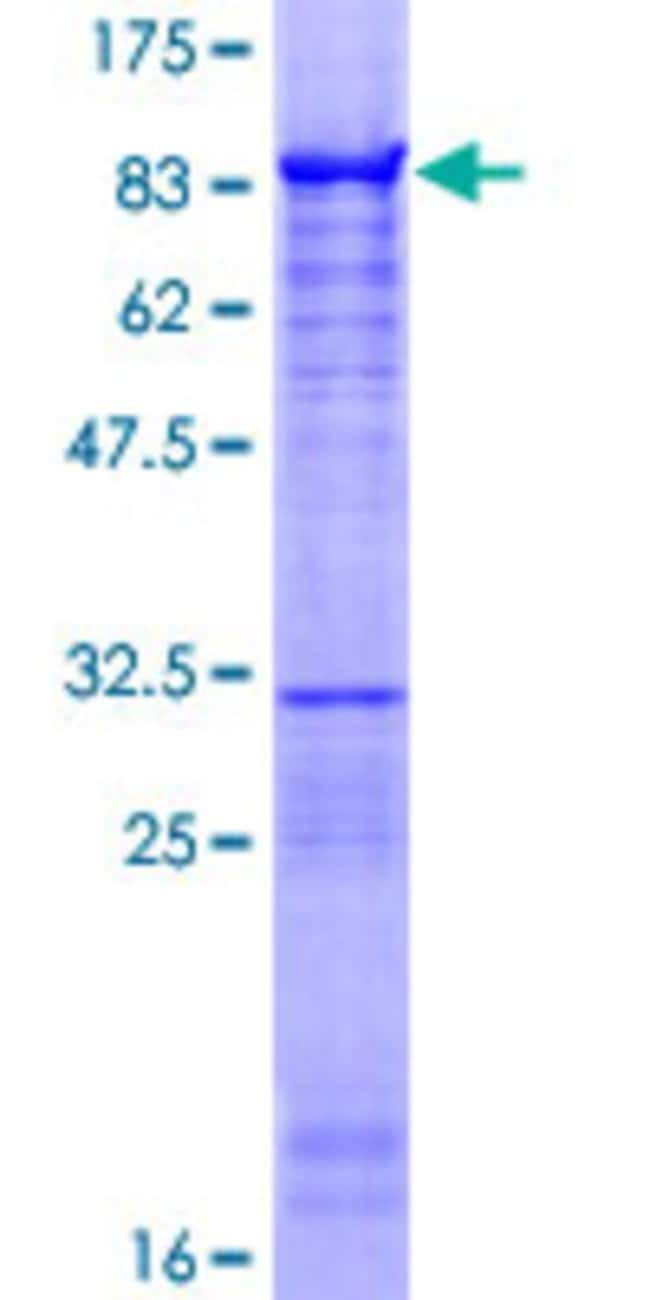 AbnovaHuman ZNF639 Full-length ORF (NP_057415.1, 1 a.a. - 485 a.a.) Recombinant