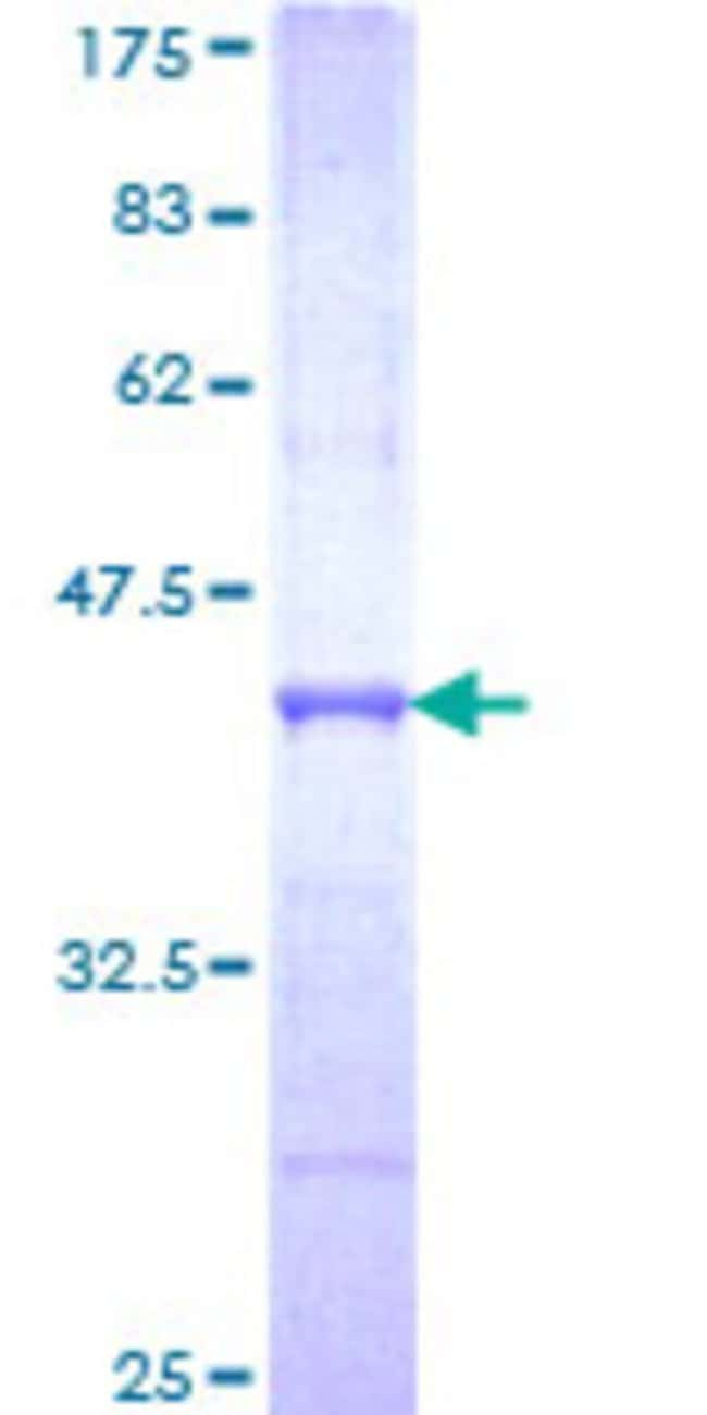 Abnova Human RAPGEFL1 Partial ORF (NP_057423, 1 a.a. - 99 a.a.) Recombinant