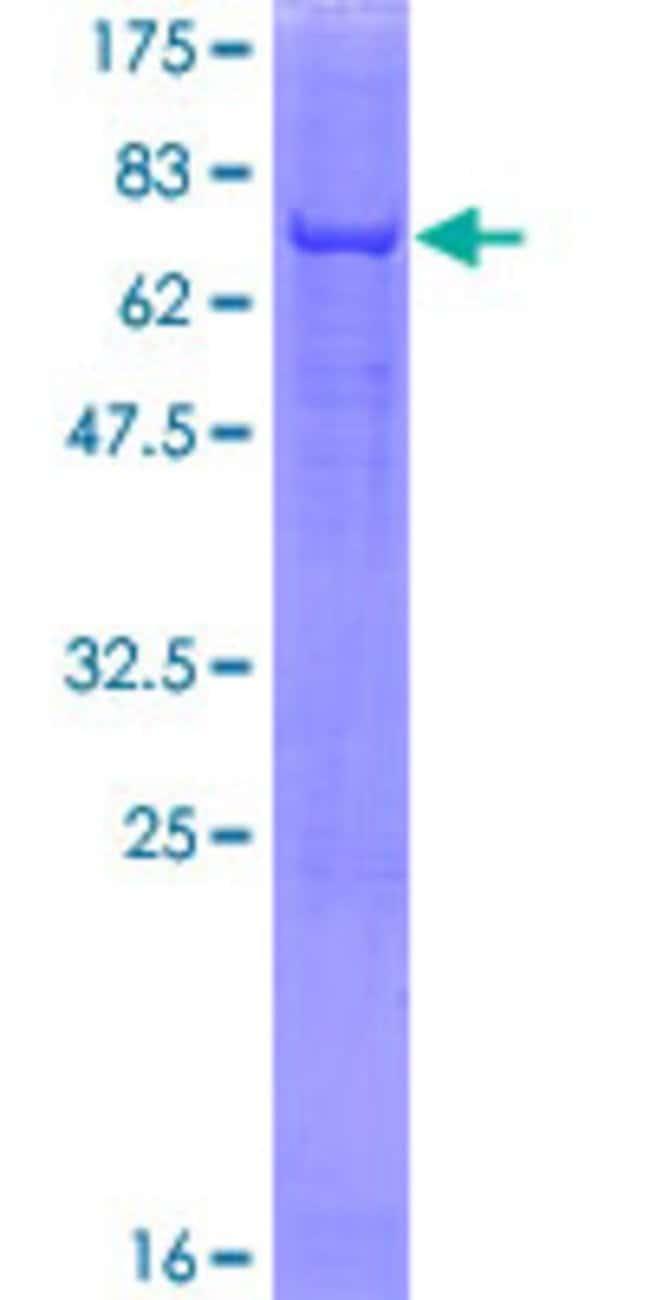 AbnovaHuman ACP6 Full-length ORF (NP_057445.2, 1 a.a. - 428 a.a.) Recombinant