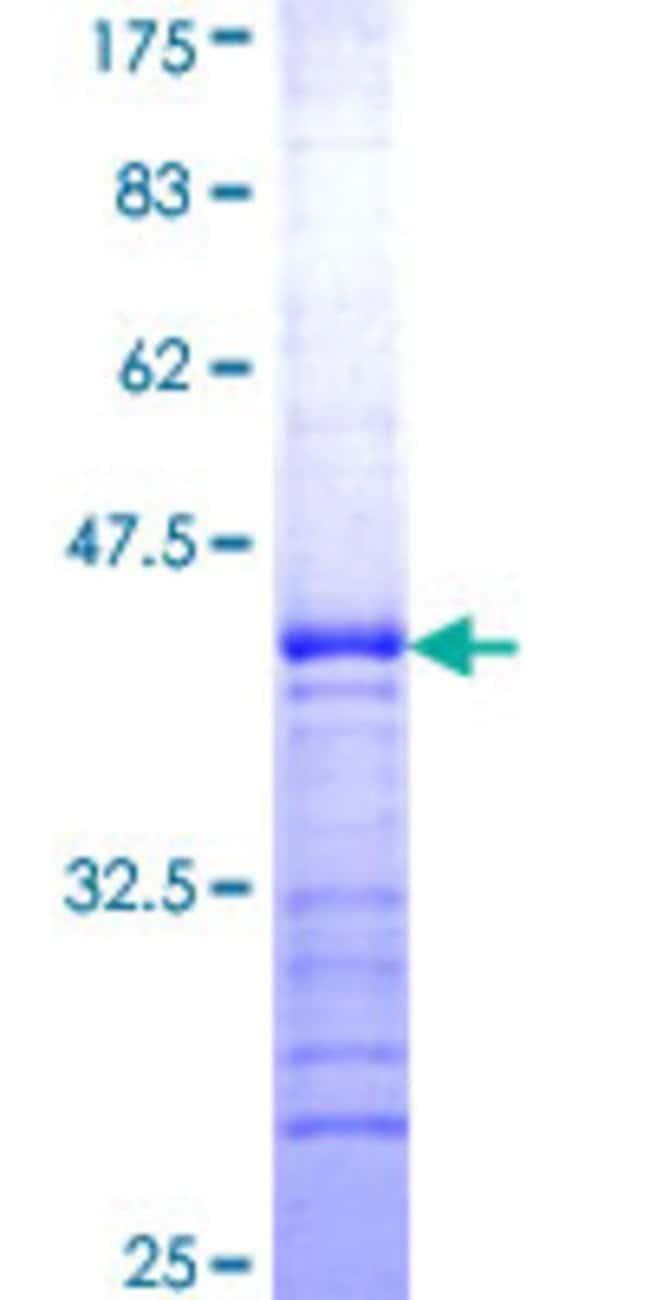 AbnovaHuman RAB9B Partial ORF (NP_057454, 102 a.a. - 201 a.a.) Recombinant