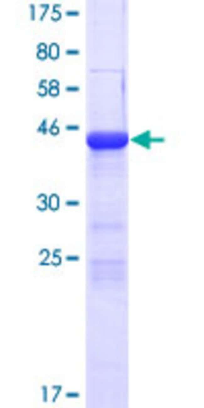 AbnovaHuman COPZ2 Full-length ORF (NP_057513.1, 1 a.a. - 210 a.a.) Recombinant