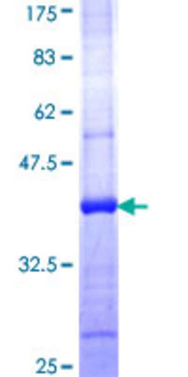 AbnovaHuman GLTP Partial ORF (NP_057517, 110 a.a. - 209 a.a.) Recombinant