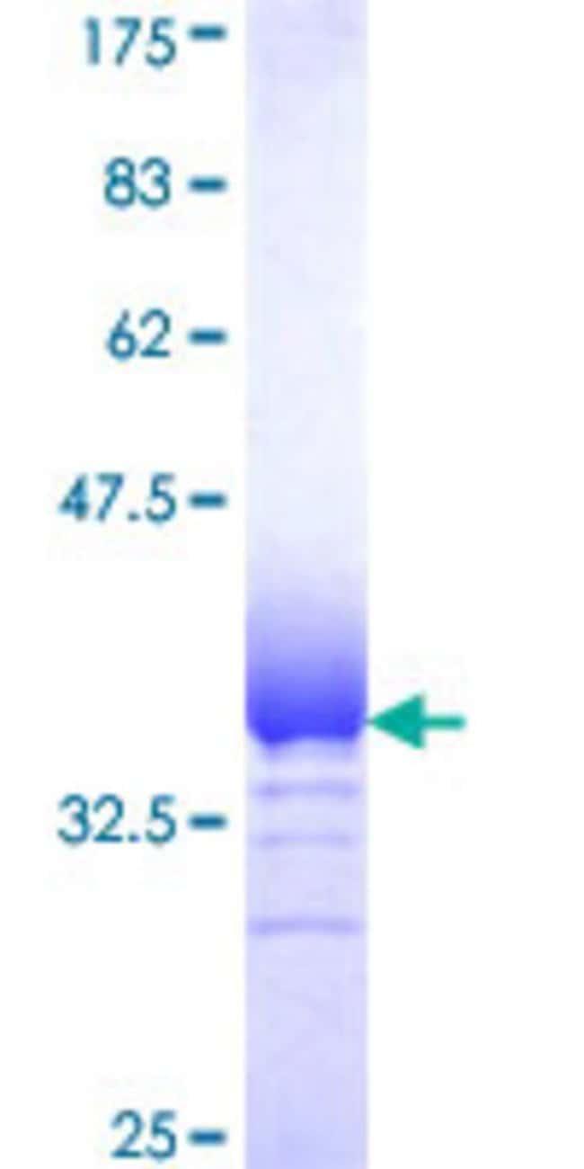 AbnovaHuman RNF181 Partial ORF (NP_057578, 90 a.a. - 153 a.a.) Recombinant