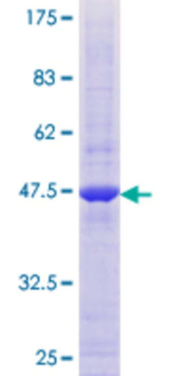 AbnovaHuman MARCH2 Full-length ORF (NP_001005416.1, 1 a.a. - 176 a.a.)