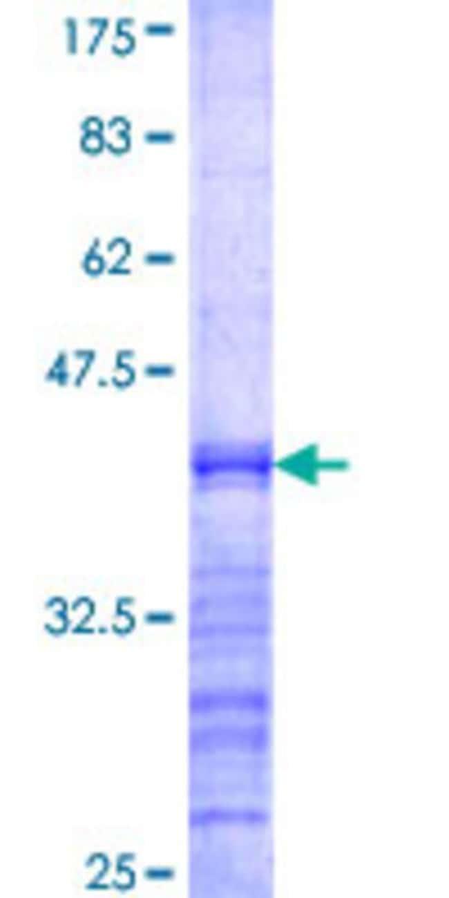 AbnovaHuman CDKL3 Partial ORF (AAH41799, 483 a.a. - 592 a.a.) Recombinant
