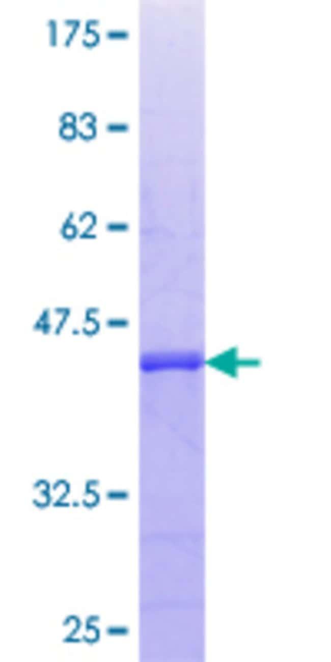 AbnovaHuman CDKL3 Partial ORF (AAH41799.1, 322 a.a. - 420 a.a.) Recombinant