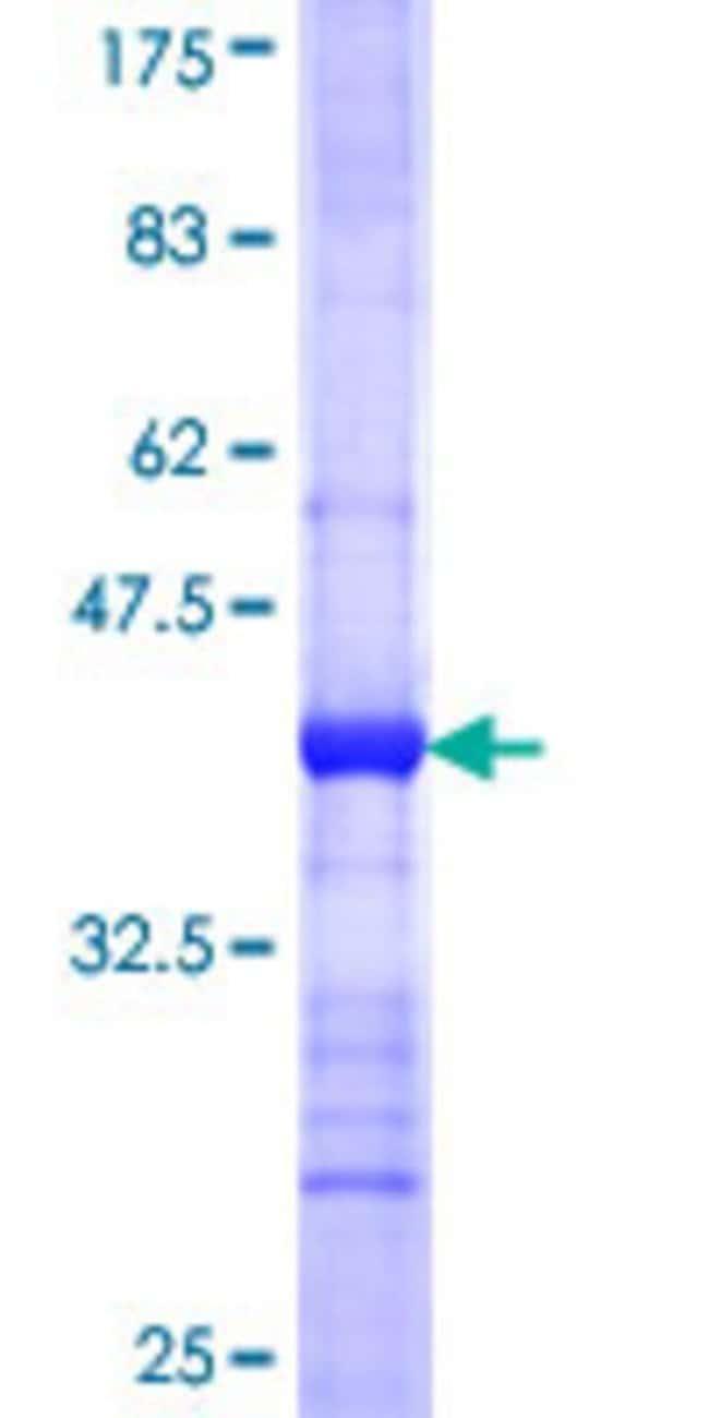 AbnovaHuman CLEC1B Partial ORF (NP_057593, 128 a.a. - 229 a.a.) Recombinant