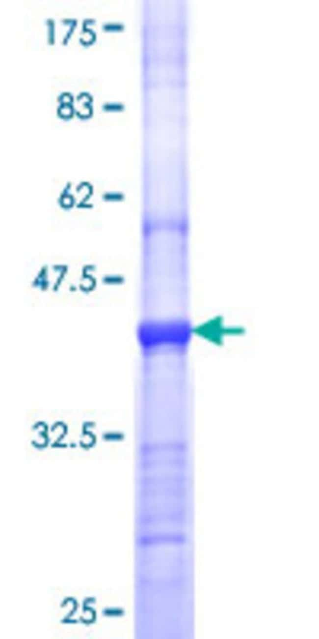 AbnovaHuman CLEC1A Partial ORF (NP_057595, 180 a.a. - 280 a.a.) Recombinant