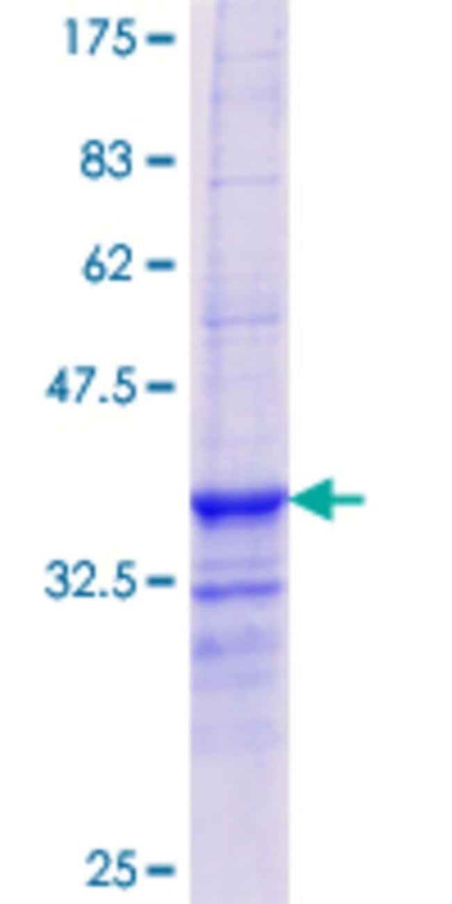 Abnova™Human PIPOX Partial ORF (AAH27622.1, 292 a.a. - 384 a.a.) Recombinant Protein with GST-tag at N-terminal 25μg Abnova™Human PIPOX Partial ORF (AAH27622.1, 292 a.a. - 384 a.a.) Recombinant Protein with GST-tag at N-terminal