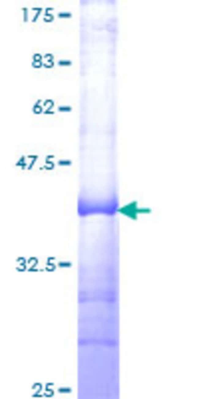 AbnovaHuman TFDP3 Partial ORF (NP_057605, 1 a.a. - 100 a.a.) Recombinant