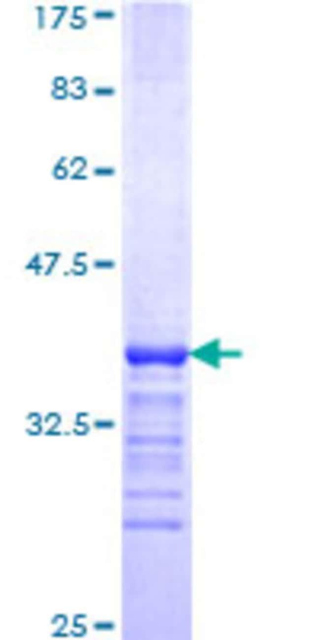 Abnova Human KLF3 Partial ORF (NP_057615, 1 a.a. - 69 a.a.) Recombinant