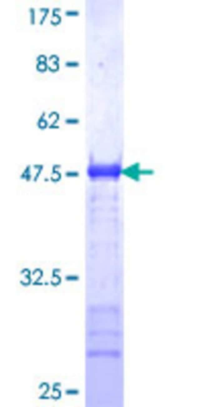 AbnovaHuman GOLM1 Partial ORF (NP_057632, 302 a.a. - 401 a.a.) Recombinant