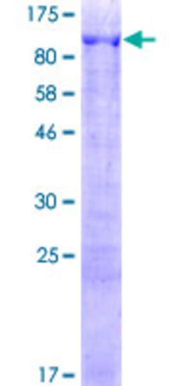 AbnovaHuman ANKMY1 Full-length ORF (AAH73146.1, 1 a.a. - 720 a.a.) Recombinant