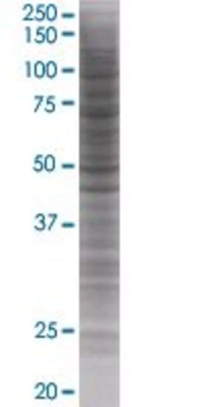 AbnovaANKMY1 293T Cell Transient Overexpression Lysate (Denatured) 100μL:Protein