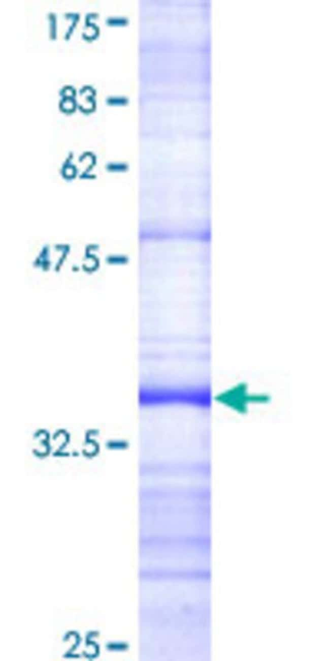 AbnovaHuman BFAR Partial ORF (AAH03054, 101 a.a. - 200 a.a.) Recombinant