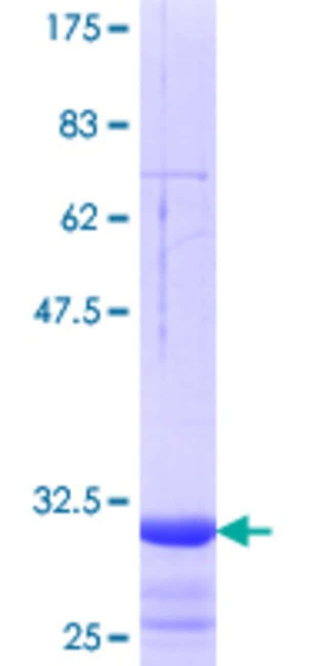 AbnovaHuman SLC15A3 Partial ORF (NP_057666.1, 254 a.a. - 311 a.a.) Recombinant