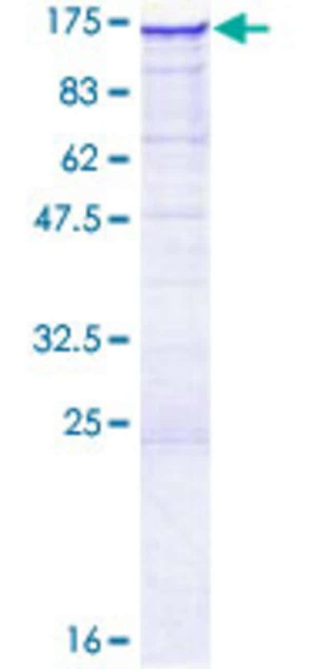 AbnovaHuman C5orf5 Full-length ORF (AAH56887.1, 1 a.a. - 915 a.a.) Recombinant