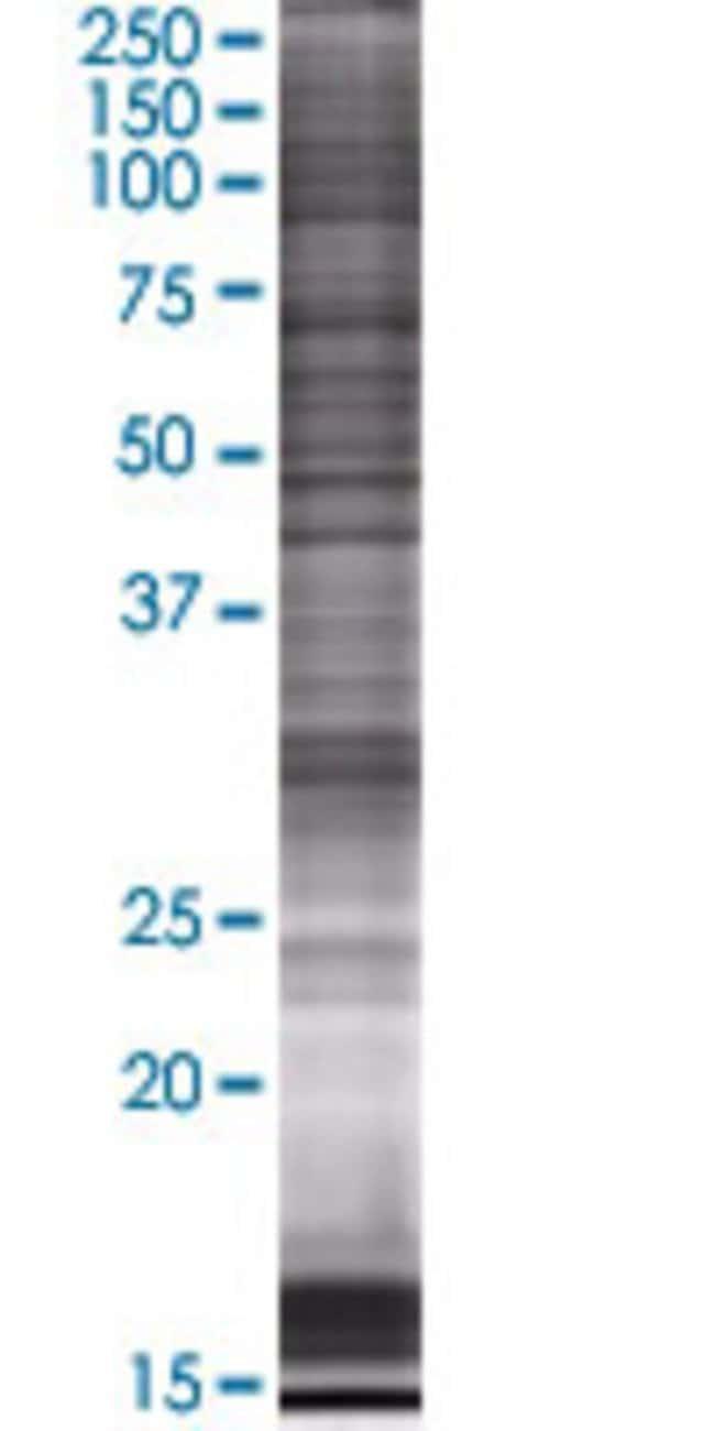 AbnovaARMCX1 293T Cell Transient Overexpression Lysate (Denatured) 100μL:Protein