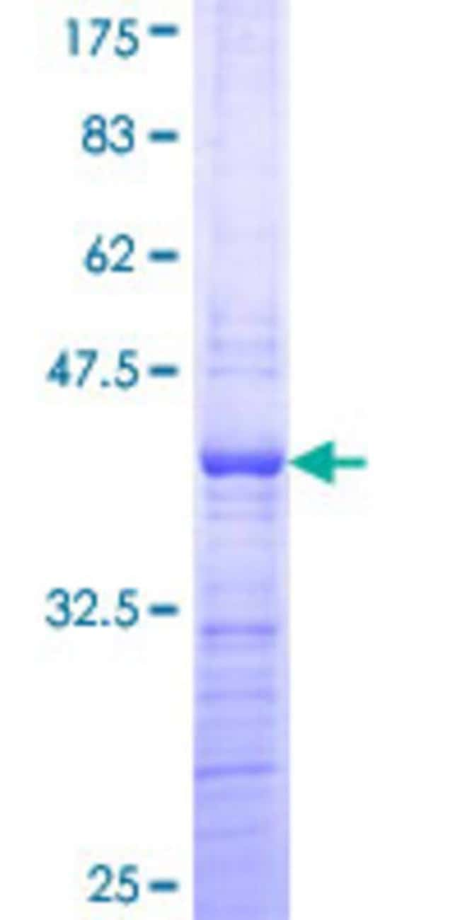 AbnovaHuman PHF21A Partial ORF (NP_057705, 331 a.a. - 430 a.a.) Recombinant