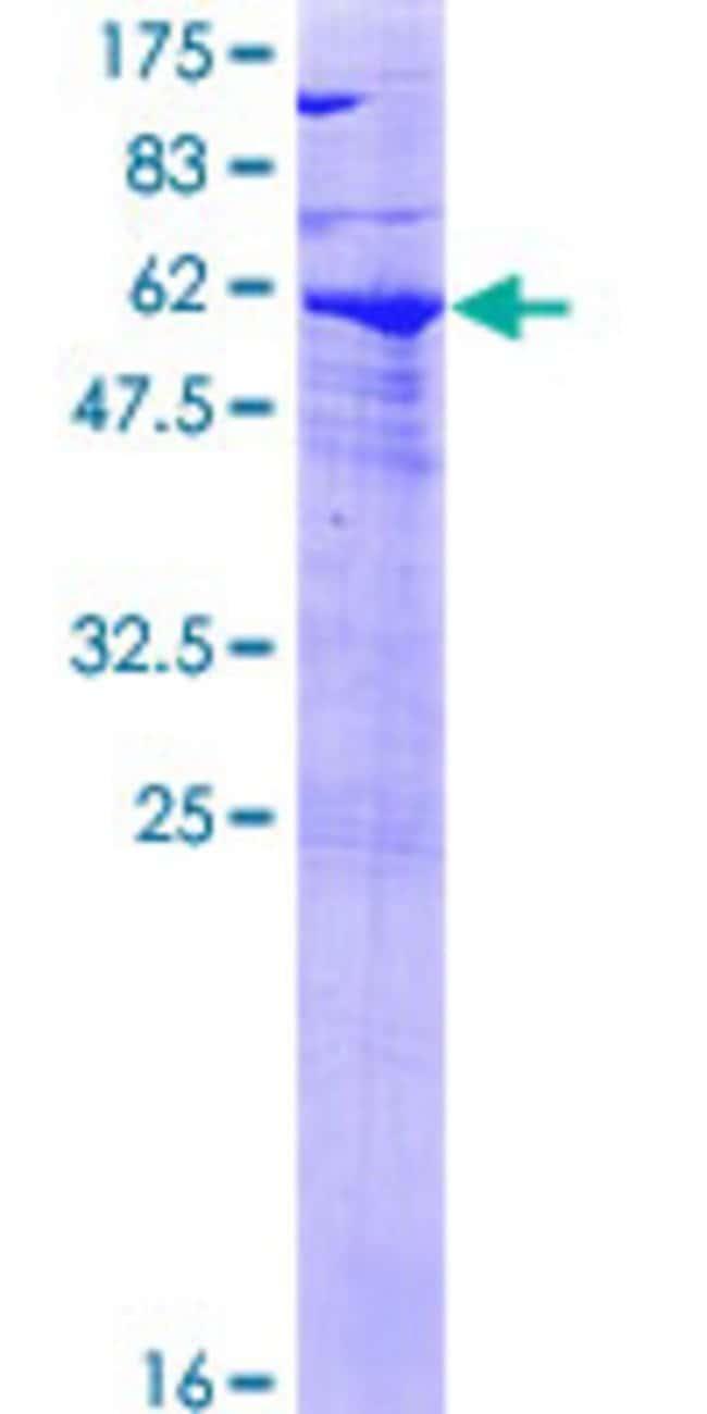AbnovaHuman SPG21 Full-length ORF (NP_057714.1, 1 a.a. - 308 a.a.) Recombinant