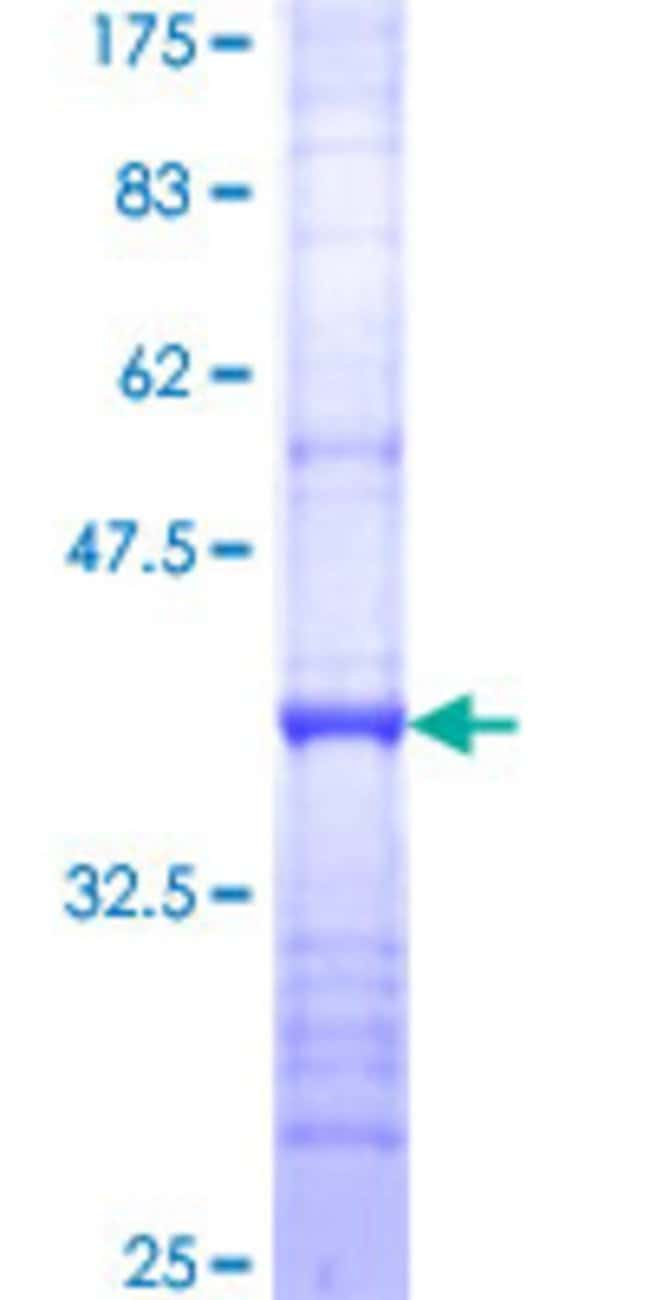 Abnova™ Human SPG21 Partial ORF (NP_057714, 211 a.a. - 306 a.a.) Recombinant Protein with GST-tag at N-terminal 10μg Abnova™ Human SPG21 Partial ORF (NP_057714, 211 a.a. - 306 a.a.) Recombinant Protein with GST-tag at N-terminal