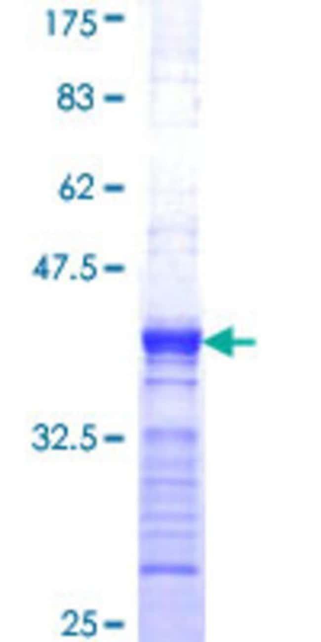 AbnovaHuman ARL6IP4 Partial ORF (NP_061164, 261 a.a. - 360 a.a.) Recombinant