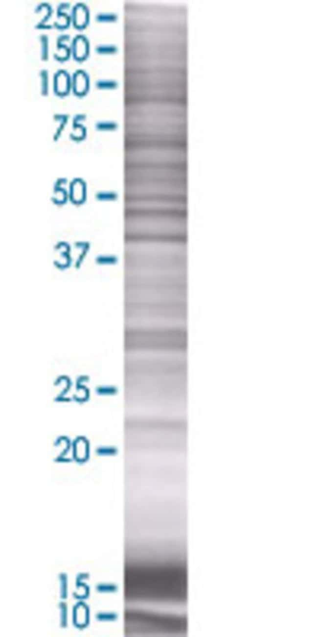 AbnovaARL6IP4 293T Cell Transient Overexpression Lysate (Denatured) (T01)