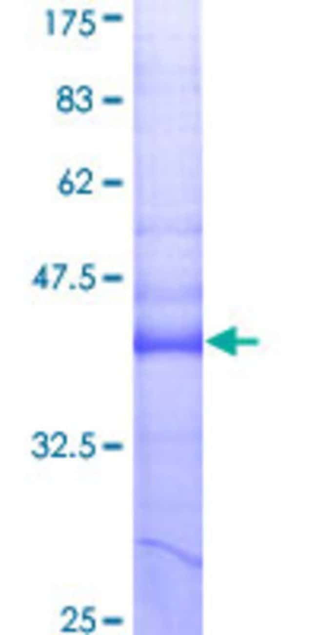 AbnovaHuman TNFRSF12A Partial ORF (AAH02718, 28 a.a. - 129 a.a.) Recombinant