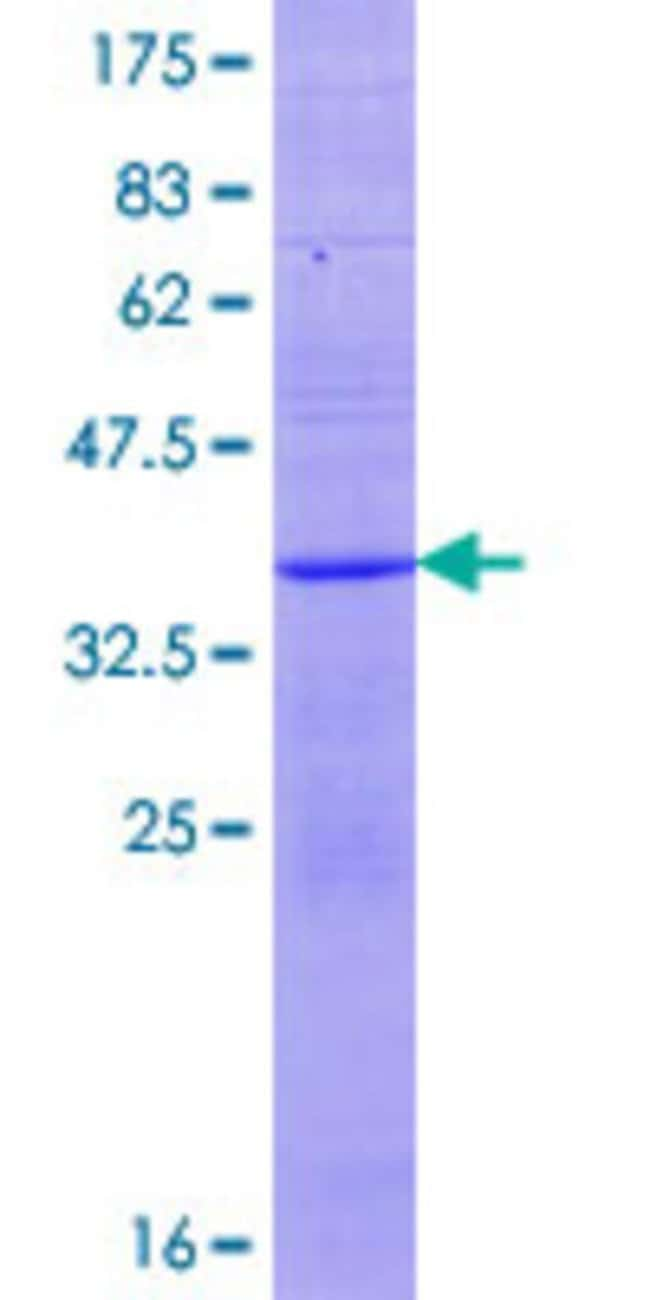 AbnovaHuman KLRF1 Full-length ORF (AAH98166.1, 1 a.a. - 124 a.a.) Recombinant