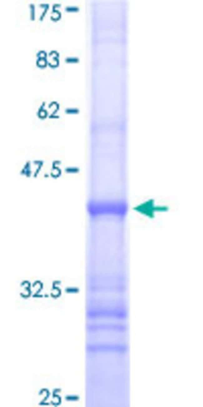 Abnova™ Human KLRF1 Partial ORF (NP_057607, 69 a.a. - 166 a.a.) Recombinant Protein with GST-tag at N-terminal 25μg Abnova™ Human KLRF1 Partial ORF (NP_057607, 69 a.a. - 166 a.a.) Recombinant Protein with GST-tag at N-terminal