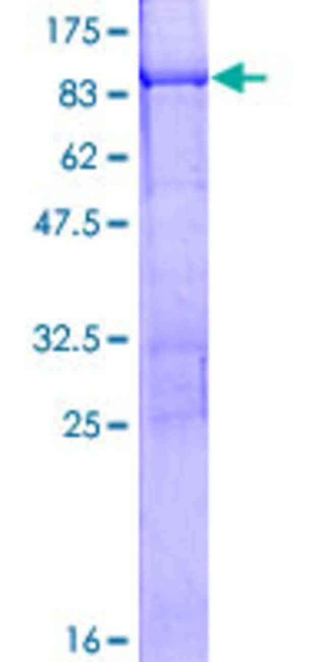 AbnovaHuman KRT76 Full-length ORF (NP_056932.1, 1 a.a. - 638 a.a.) Recombinant
