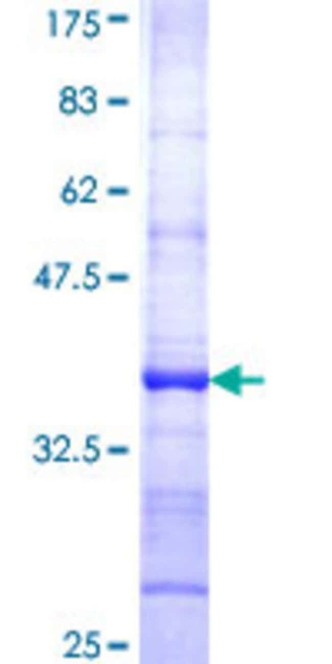 AbnovaHuman HOOK1 Partial ORF (NP_056972, 632 a.a. - 728 a.a.) Recombinant