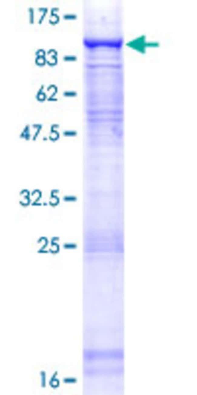 AbnovaHuman CDC40 Full-length ORF (NP_056975.1, 1 a.a. - 579 a.a.) Recombinant