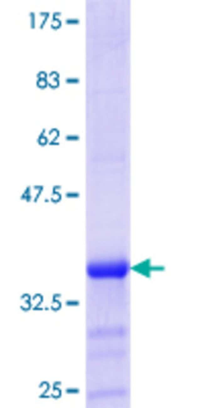 AbnovaHuman ZMYND10 Partial ORF (NP_056980.2, 341 a.a. - 440 a.a.) Recombinant