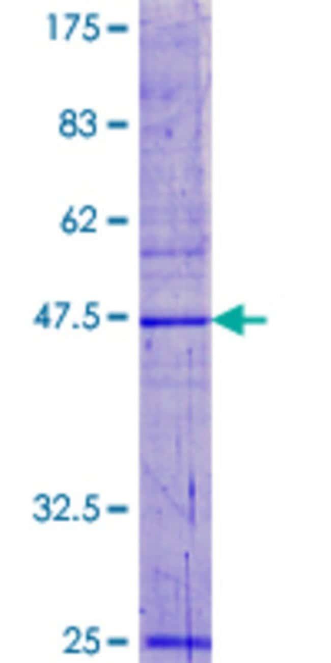 AbnovaHuman POP5 Full-length ORF (NP_057002.2, 1 a.a. - 163 a.a.) Recombinant